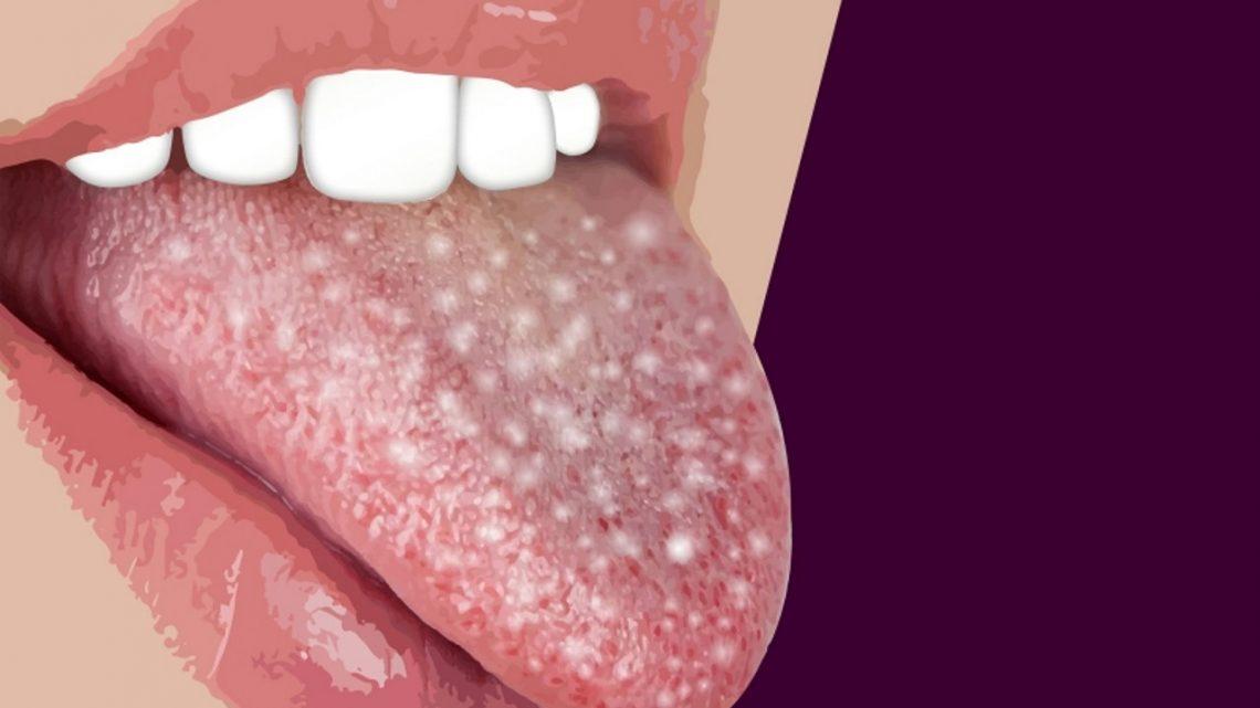 Biały nalot, ból i dyskomfort w jamie ustnej? Sprawdź czy to coś poważnego!